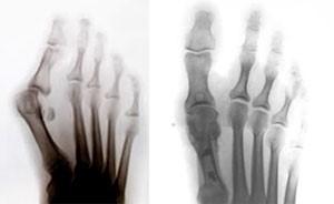 Лікування патологій ступні